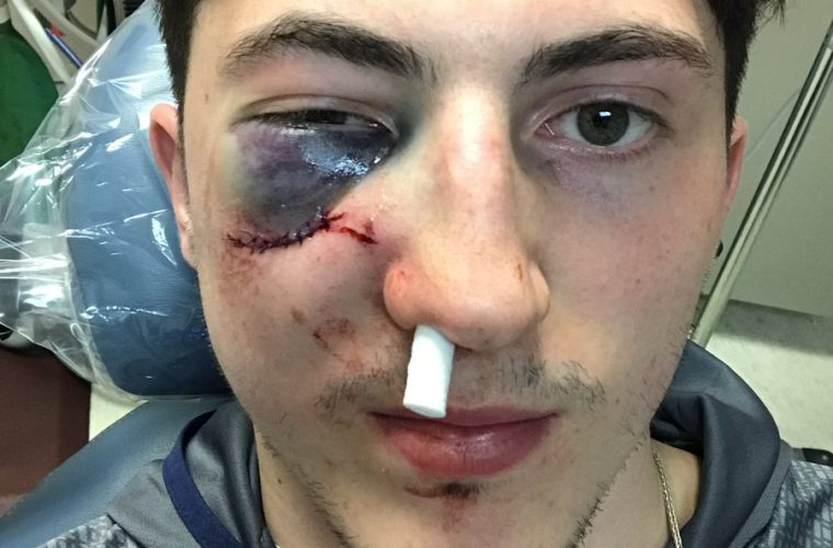 Защитник «Коламбуса» продолжил игру даже после попадания шайбой в лицо